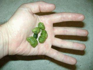 Žučni kamenci